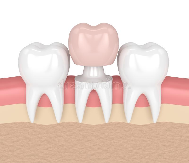 3d Render Of Teeth With Dental Crown Restoration Stock Illustration ...