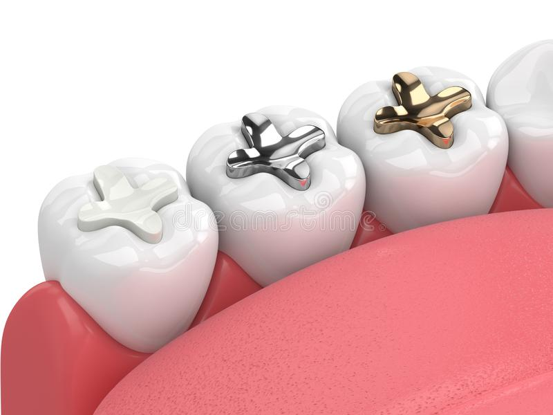 3d render of teeth with inlay. 3d render of jaw with teeth and three types of inlay over white royalty free illustration