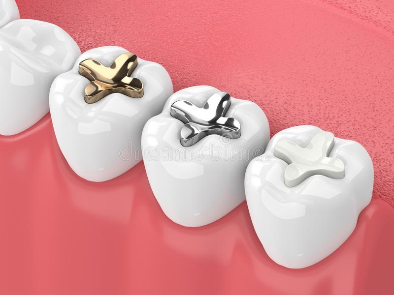 3d render of teeth with inlay. 3d render of jaw with teeth and three types of inlay over white stock illustration