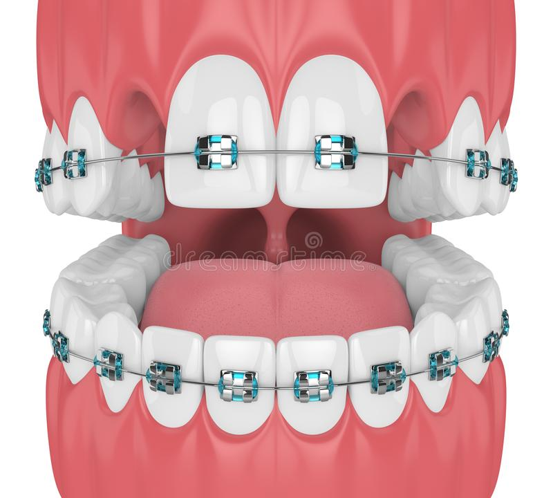 3d render of teeth with orthodontic braces and cavities. Orthodontic braces concept stock illustration