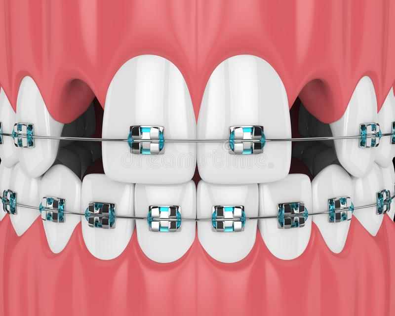 3d render of teeth with orthodontic braces and cavities. Orthodontic braces concept royalty free illustration