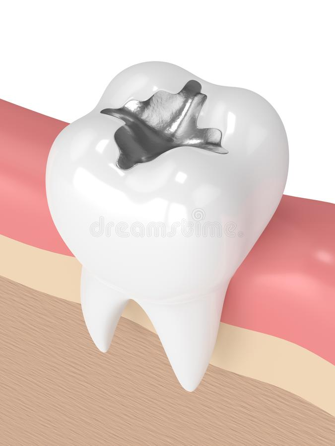 3d Render Of Tooth With Dental Amalgam Filling Stock Illustration ...