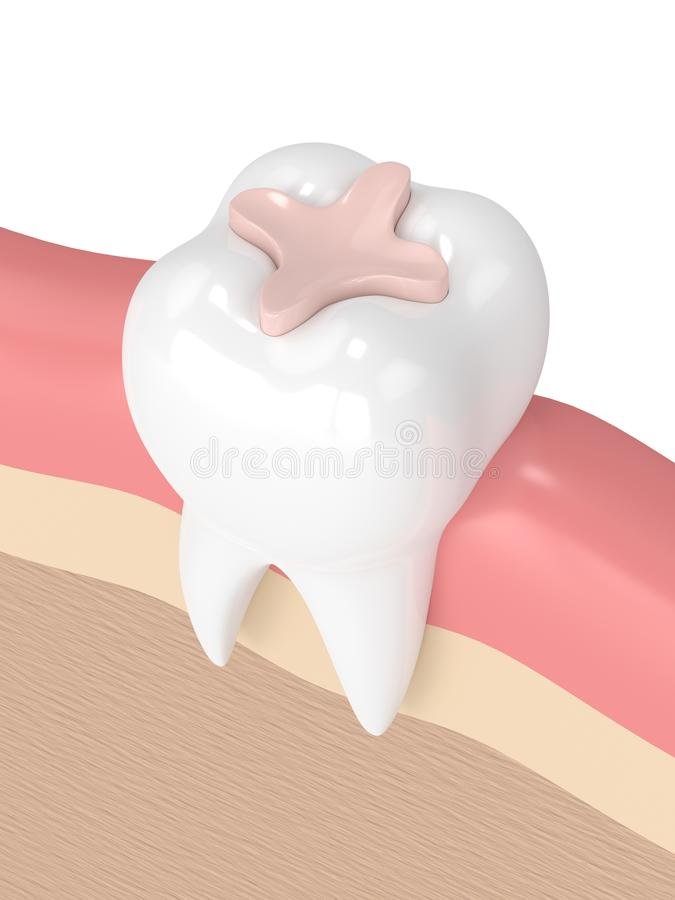 3d render of tooth with dental inlay filling. In gums vector illustration