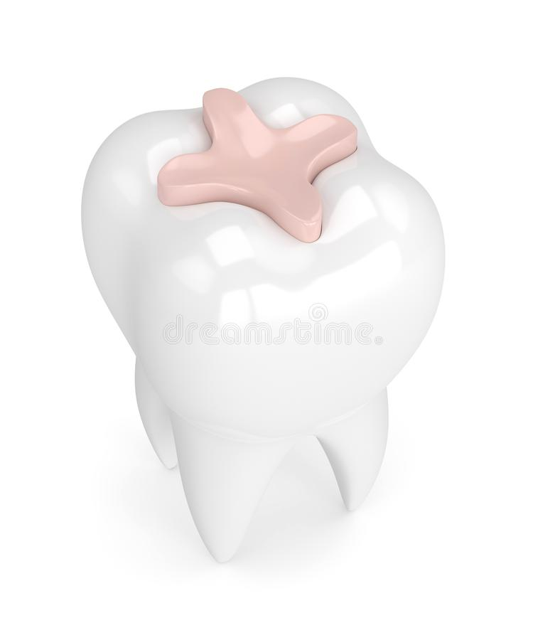 3d render of tooth with dental inlay filling. Over white background vector illustration