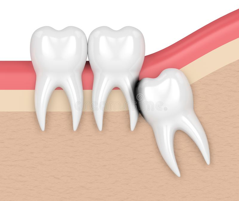 3d render of wisdom with erosion cavity. Concept of different types of wisdom teeth impactions royalty free illustration