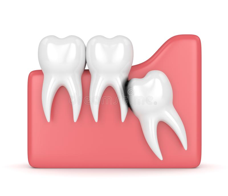 3d render of wisdom with erosion cavity. Concept of different types of wisdom teeth problems royalty free illustration