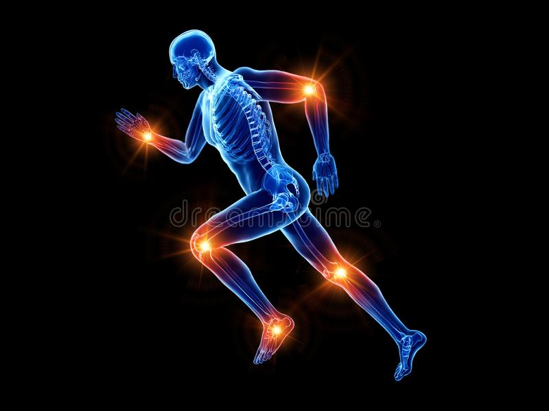 A joggers painful joints vector illustration