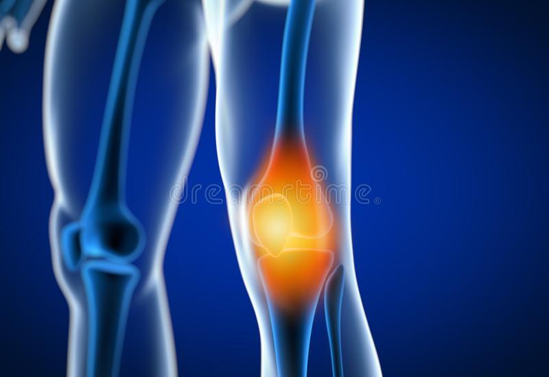 3d rendered illustration of a painful knee royalty free illustration