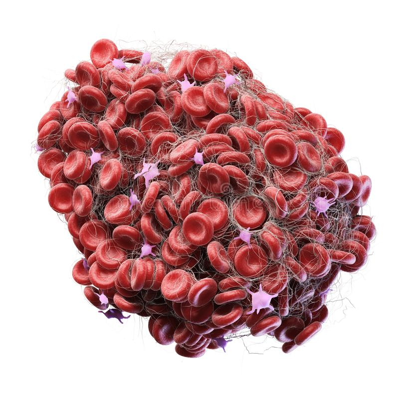 A blood clot. 3d rendered medically accurate illustration of a blood clot vector illustration