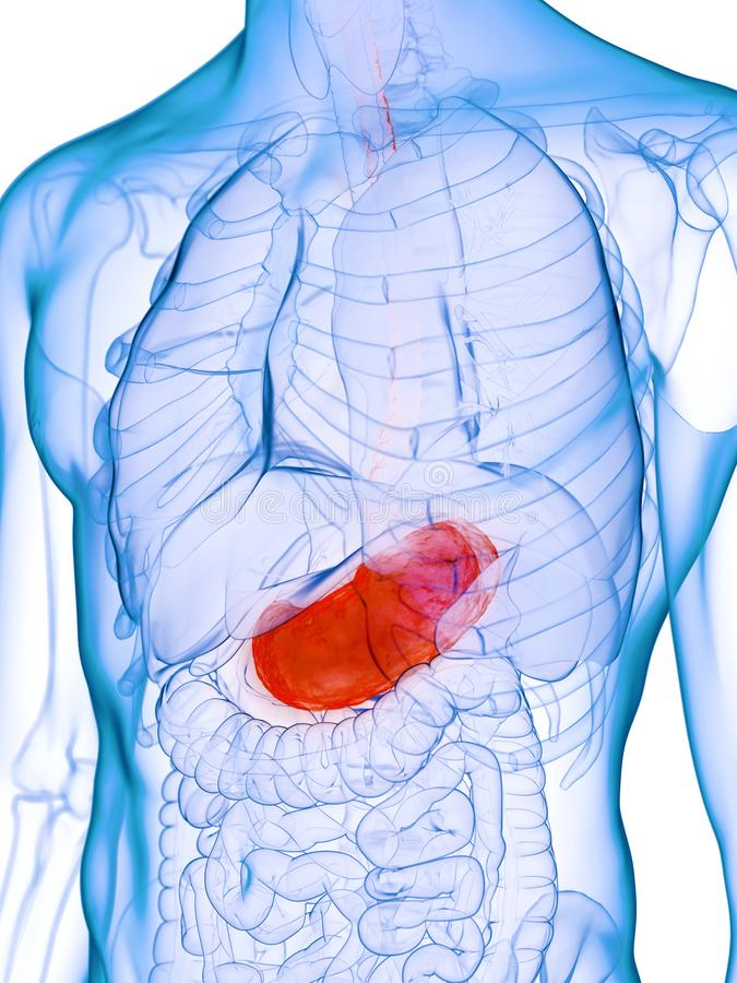 A diseased stomach. 3d rendered medically accurate illustration of a diseased stomach vector illustration