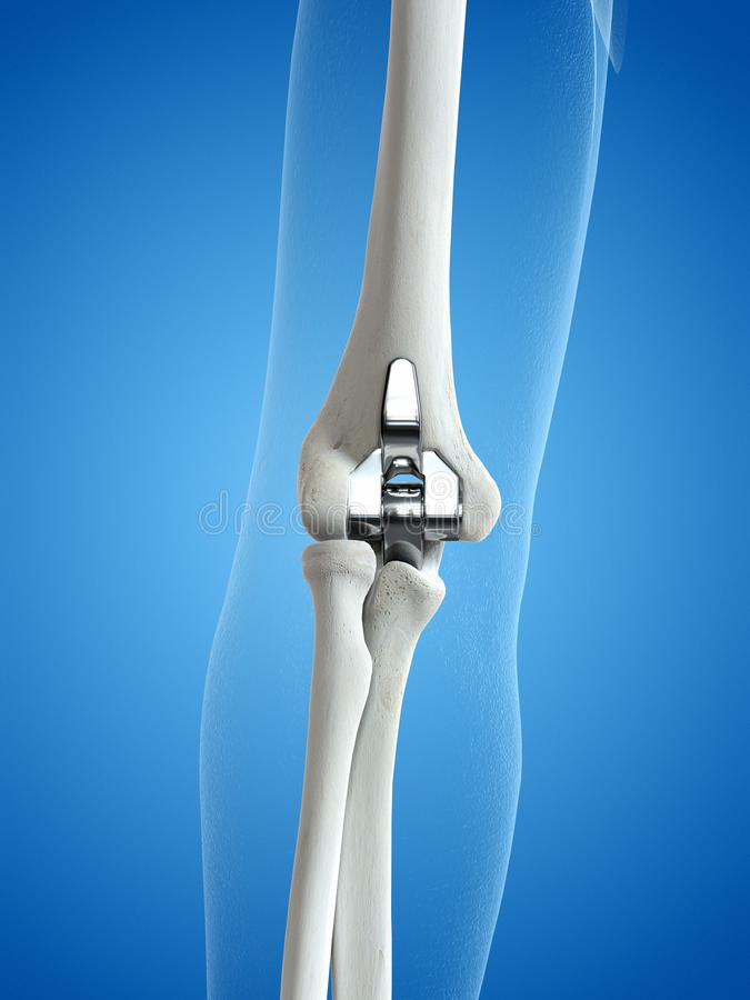 An elbow replacement. 3d rendered medically accurate illustration of an elbow replacement royalty free illustration