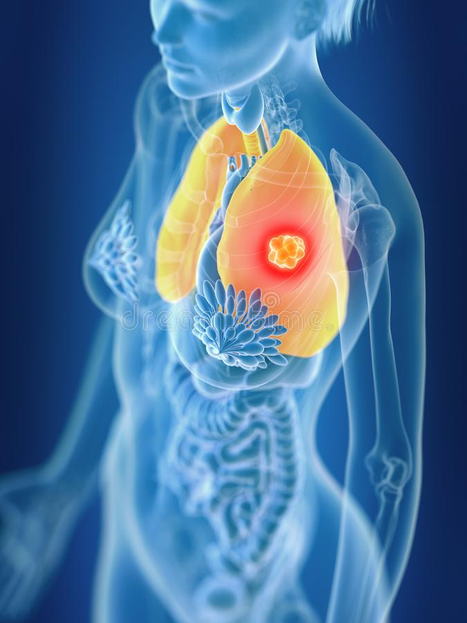 A females lung cancer. 3d rendered medically accurate illustration of a females lung cancer vector illustration
