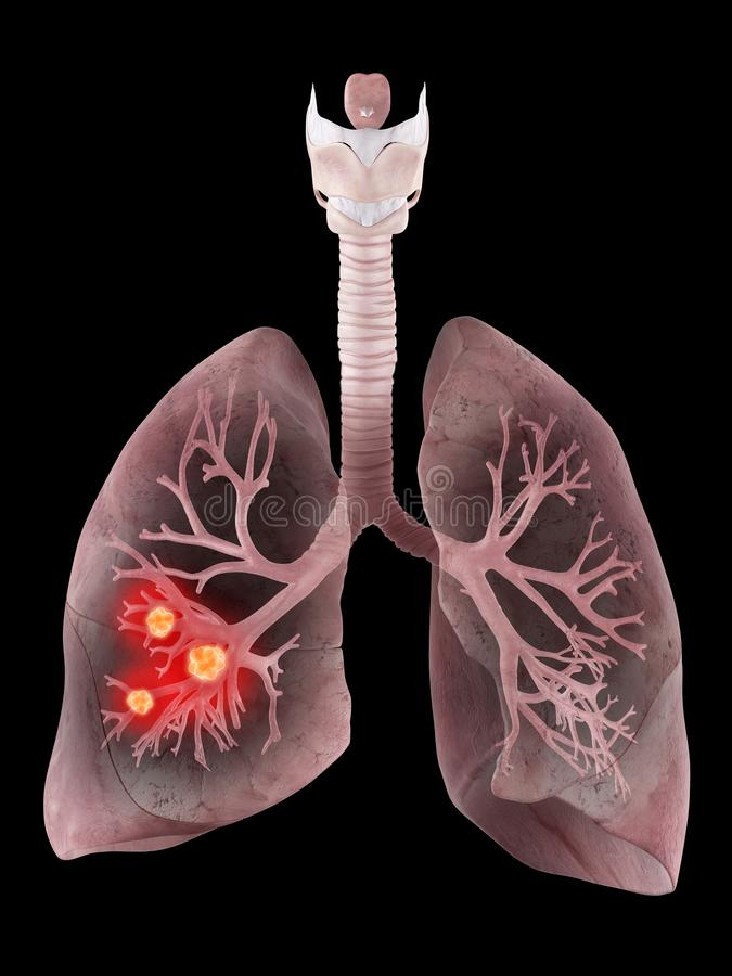 lung and bronchi with cancer stock illustration