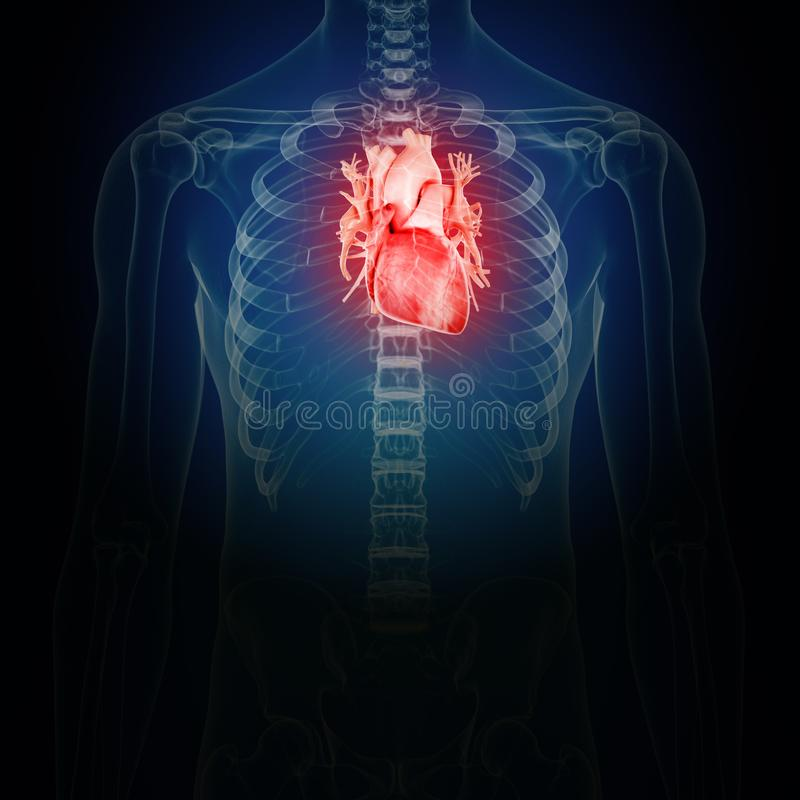 Inflamed heart royalty free illustration