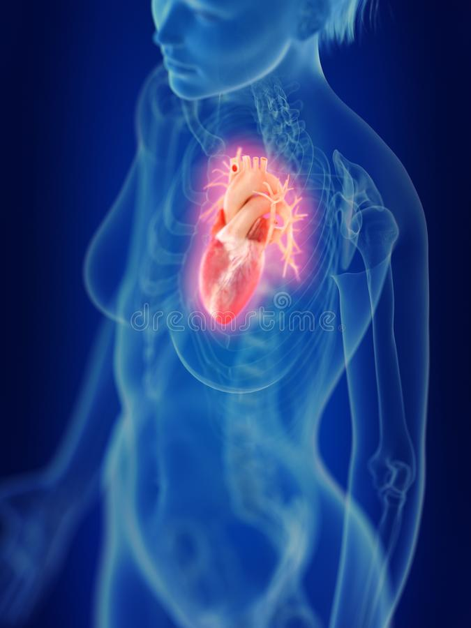 An inflamed heart. 3d rendered medically accurate illustration of an inflamed heart stock illustration