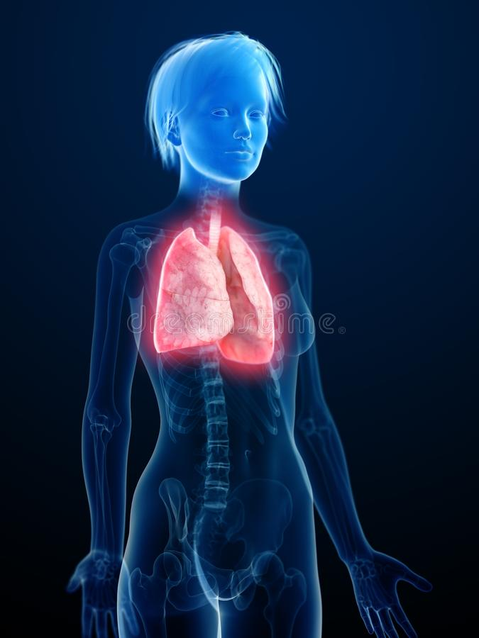 An inflamed lung. 3d rendered medically accurate illustration of an inflamed lung vector illustration