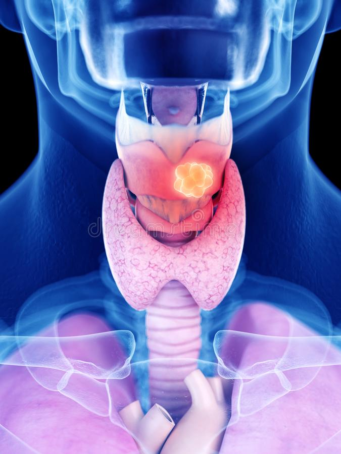 Larynx cancer. 3d rendered medically accurate illustration of larynx cancer stock illustration