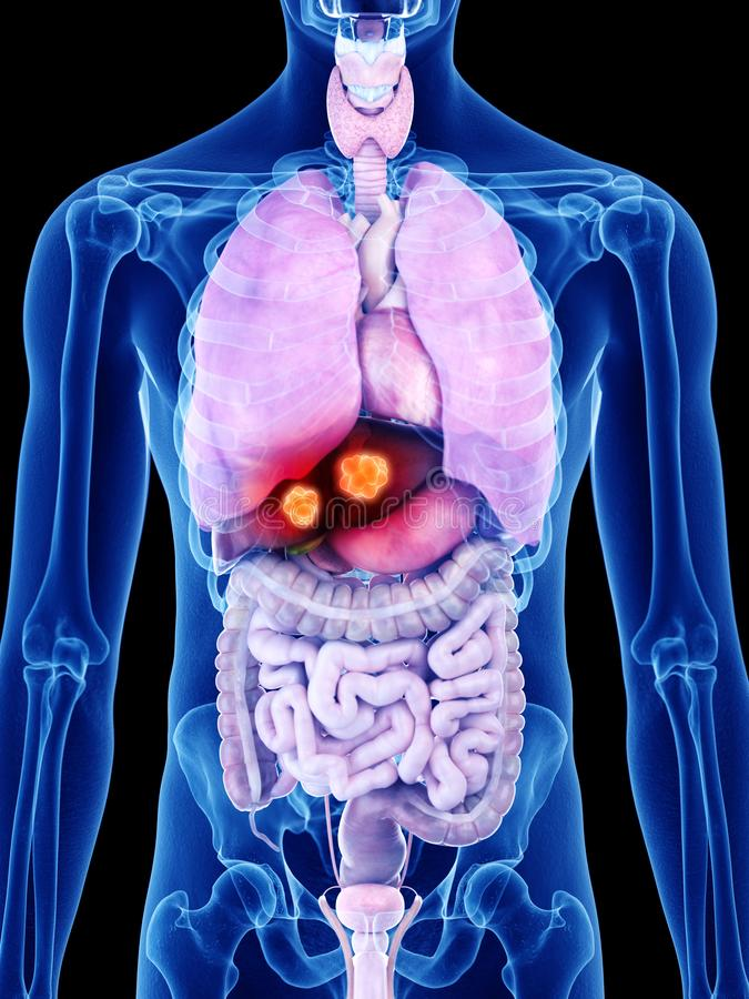 Liver cancer. 3d rendered medically accurate illustration of liver cancer royalty free illustration