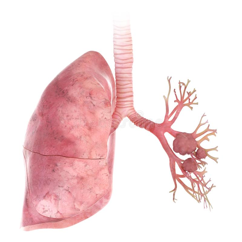 Lung cancer. 3d rendered, medically accurate illustration of lung cancer royalty free illustration