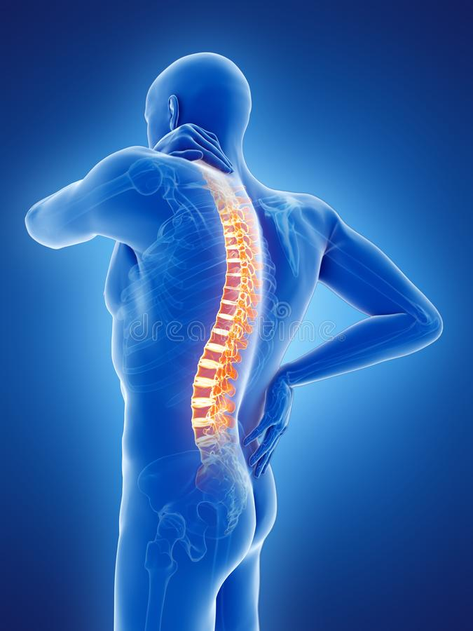 a man having a painful back vector illustration