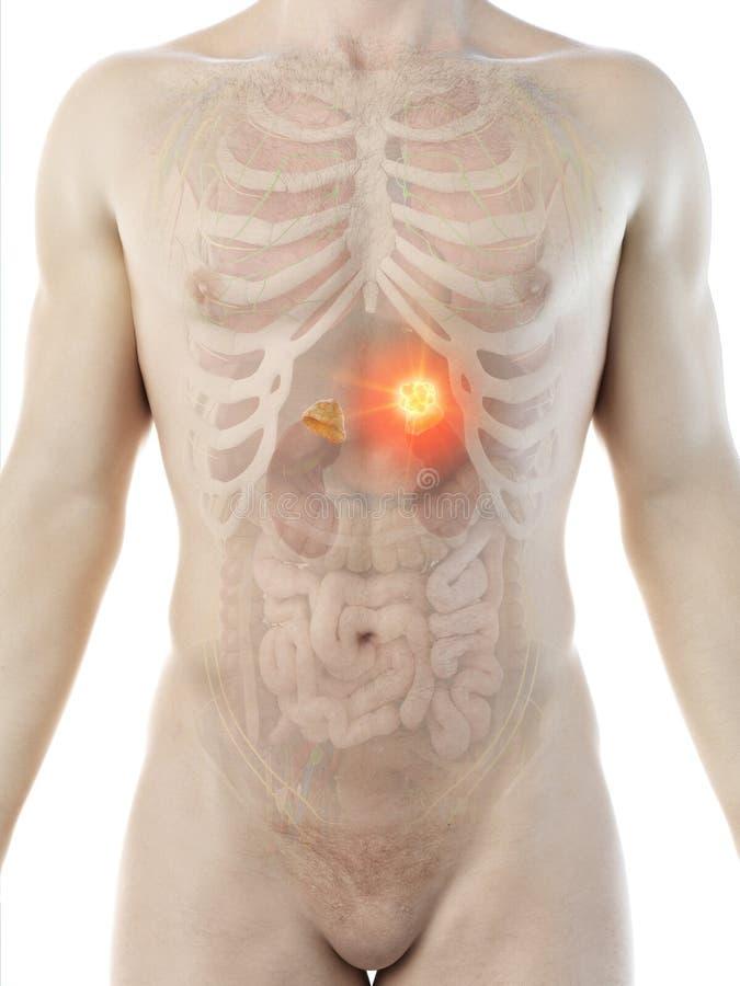 A mans adrenal glands tumor stock illustration