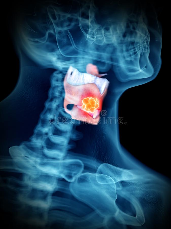 A mans larynx tumor. 3d rendered medically accurate illustration of a mans larynx tumor stock illustration