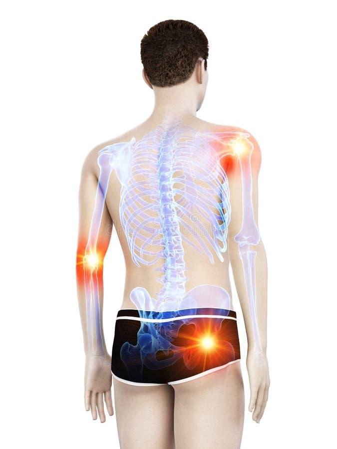 A mans painful joints vector illustration