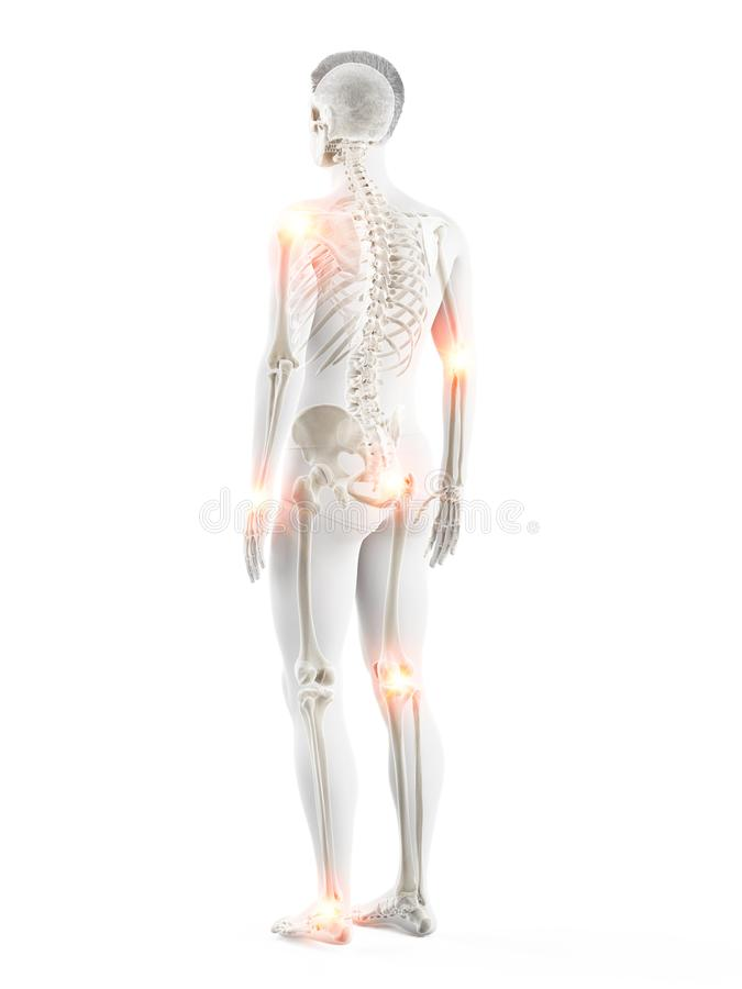 A mans painful joints stock illustration