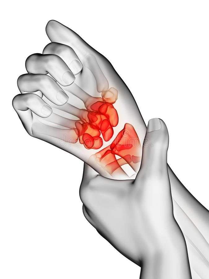 A mans painful wrist royalty free stock photos
