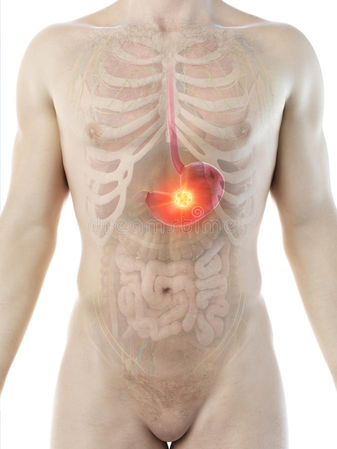 A mans stomach tumor. 3d rendered medically accurate illustration of a mans stomach tumor vector illustration