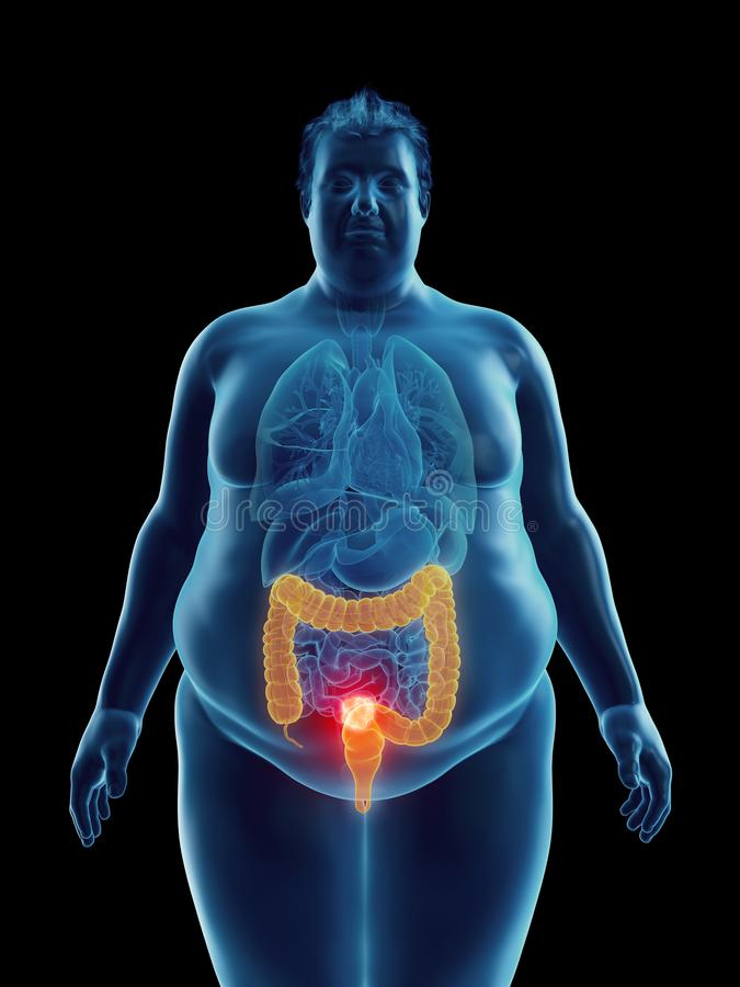 An obese mans colon tumor. 3d rendered medically accurate illustration of an obese mans colon tumor stock illustration