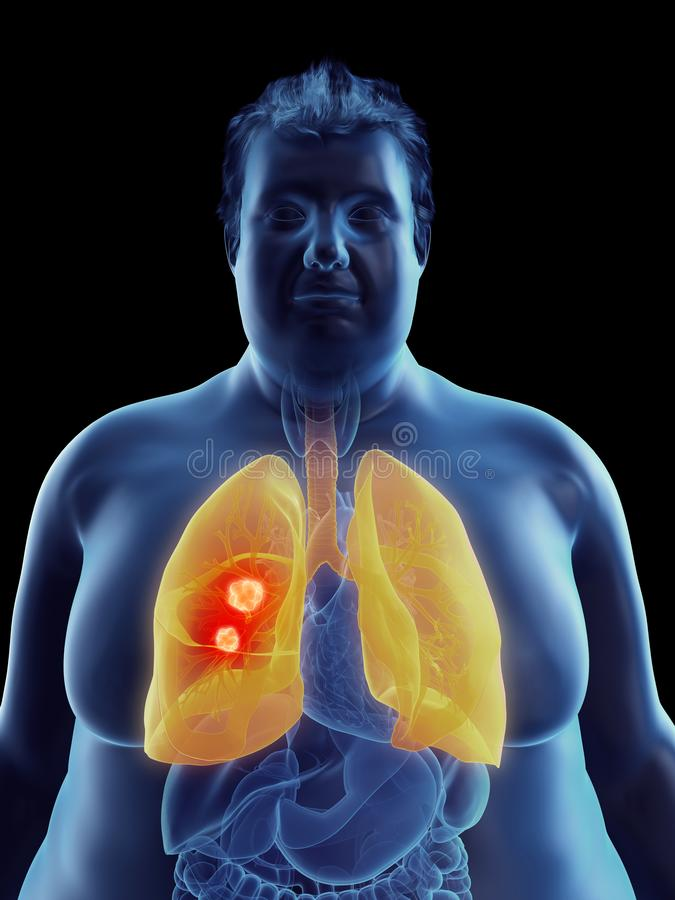 An obese mans lung tumor. 3d rendered medically accurate illustration of an obese mans lung tumor stock illustration