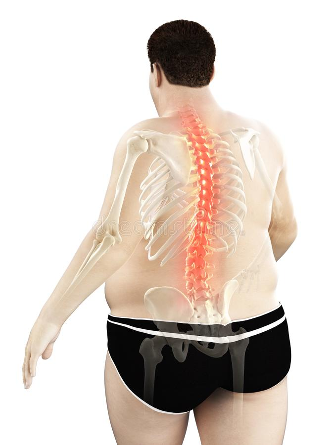 An obese mans painful back. 3d rendered medically accurate illustration of an obese mans painful back royalty free illustration