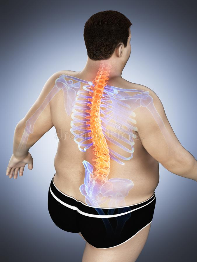 An obese mans painful back stock illustration