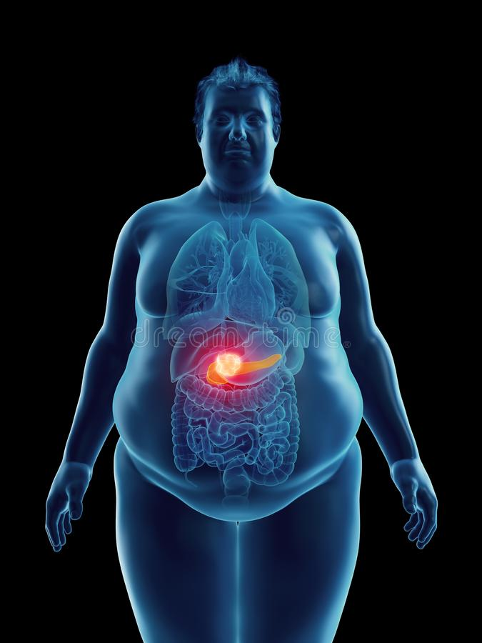 An obese mans pancreas tumor. 3d rendered medically accurate illustration of an obese mans pancreas tumor stock illustration