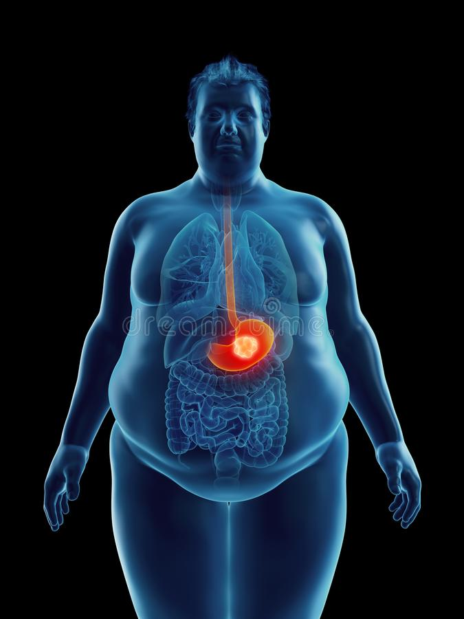 An obese mans stomach tumor. 3d rendered medically accurate illustration of an obese mans stomach tumor royalty free illustration