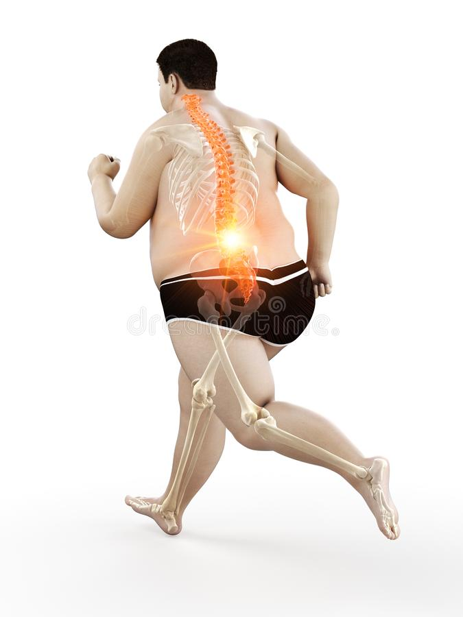 An obese runners painful back royalty free illustration
