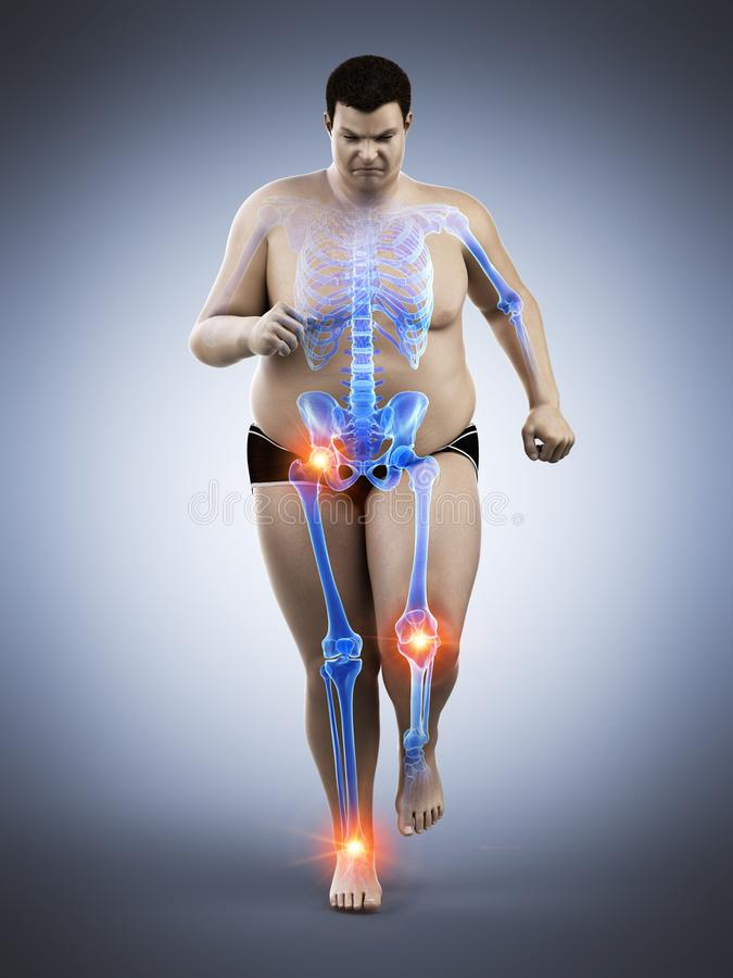 An obese runners painful joints vector illustration