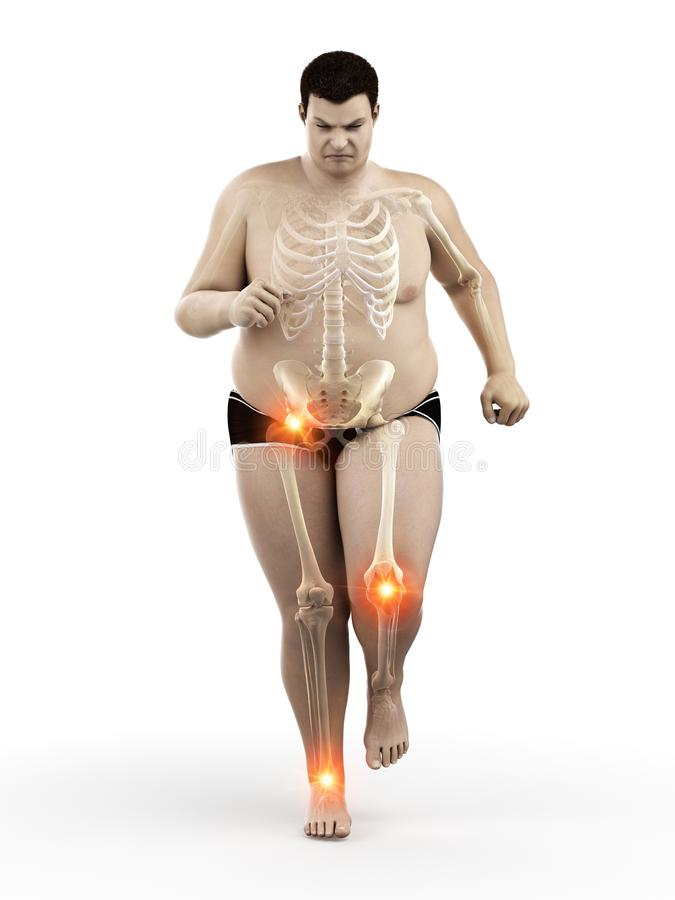 An obese runners painful joints royalty free illustration