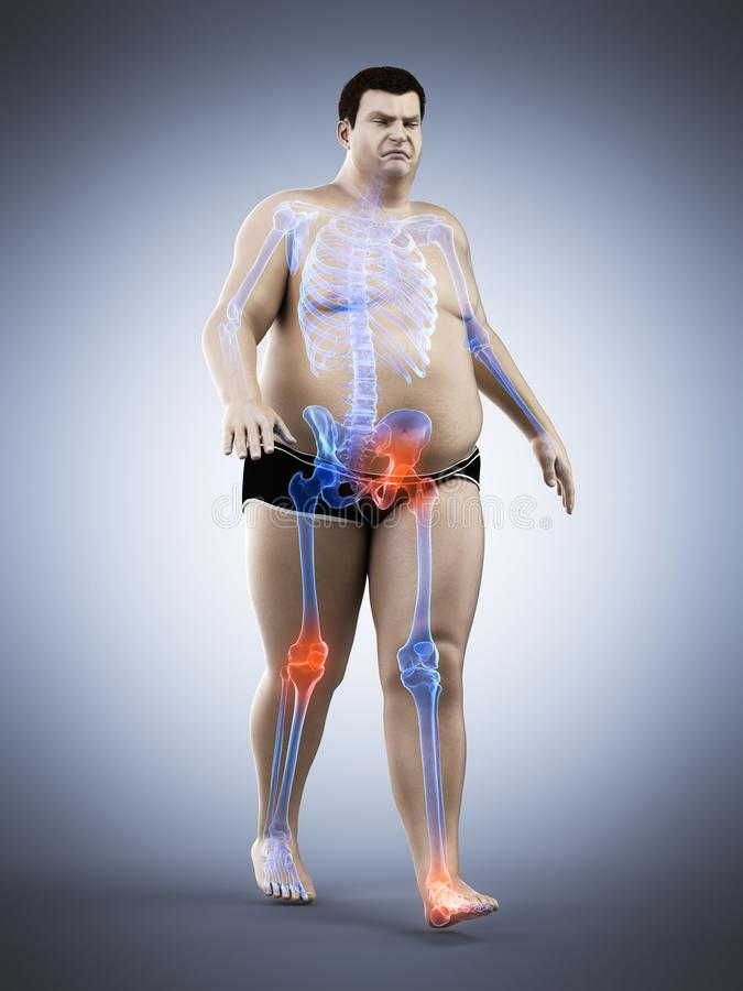 An obese runners painful joints stock illustration