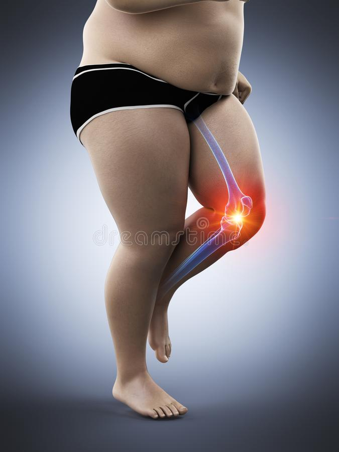 An obese runners painful knee stock illustration