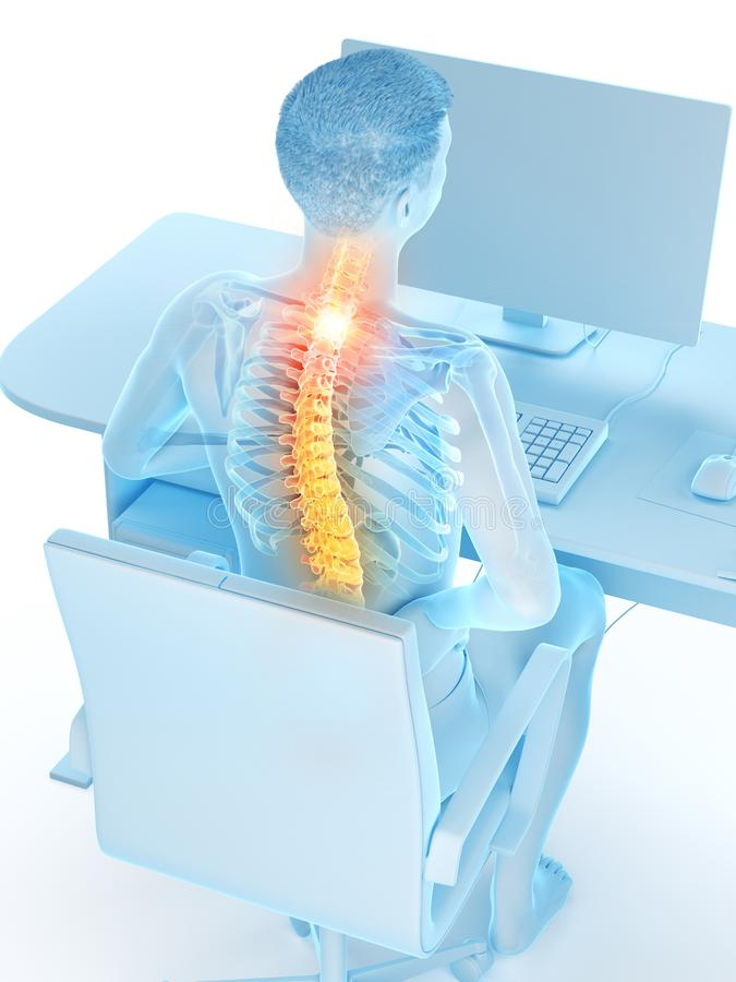 An office workers painful back. 3d rendered medically accurate illustration of an office workers painful back royalty free illustration