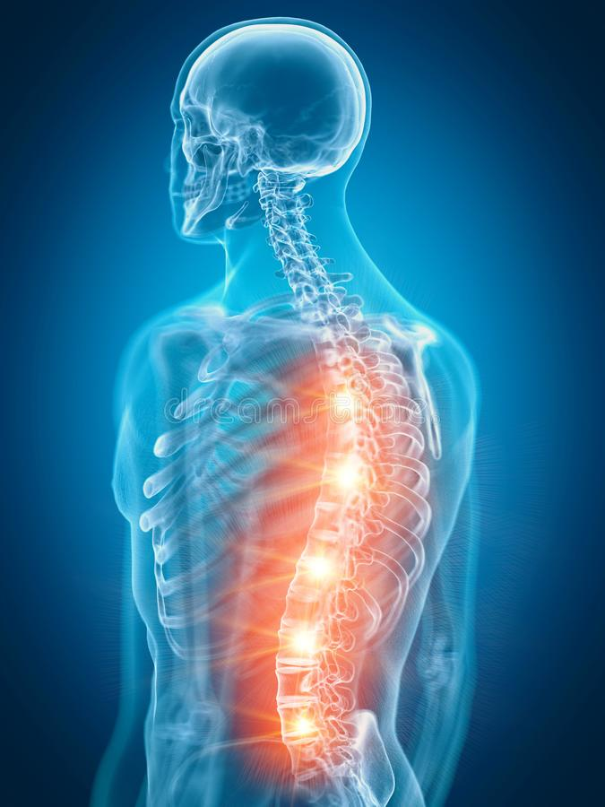 A painful back. 3d rendered medically accurate illustration of a painful back royalty free illustration