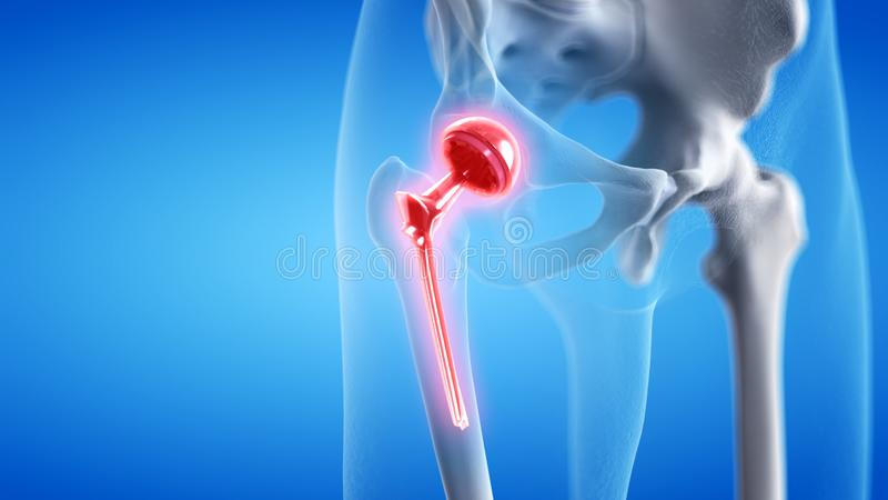 A painful hip replacement. 3d rendered medically accurate illustration of a painful hip replacement vector illustration