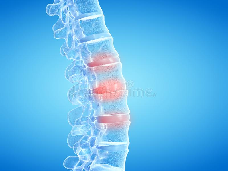 Painful intervertebral discs. 3d rendered medically accurate illustration of painful intervertebral discs stock illustration