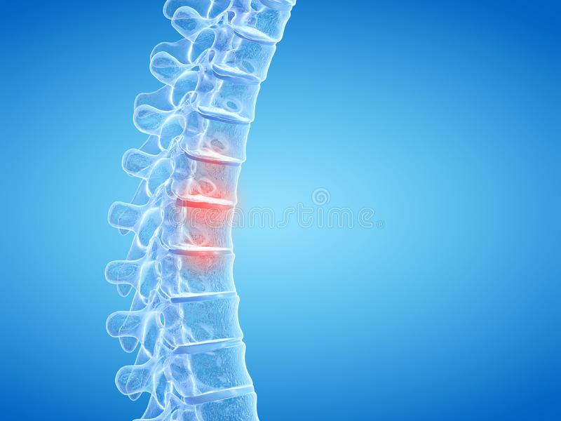 Painful intervertebral discs. 3d rendered medically accurate illustration of painful intervertebral discs royalty free illustration