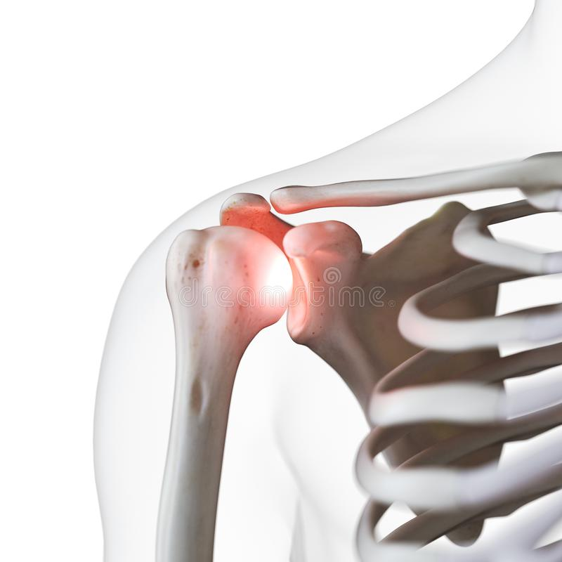 A painful shoulder joint royalty free illustration