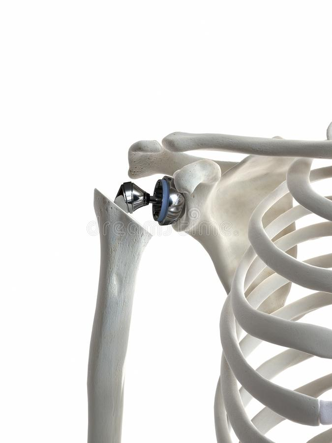 A shoulder replacement. 3d rendered medically accurate illustration of a shoulder replacement stock illustration