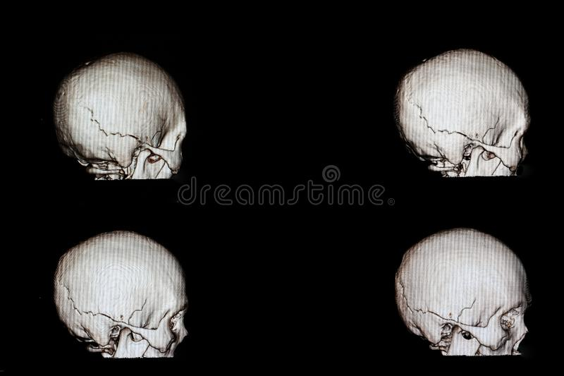 Fractured skull film. 3 d rendering of a skull of a patient with head injury who had fracture occipito-temporal bone of his cranium royalty free stock photos