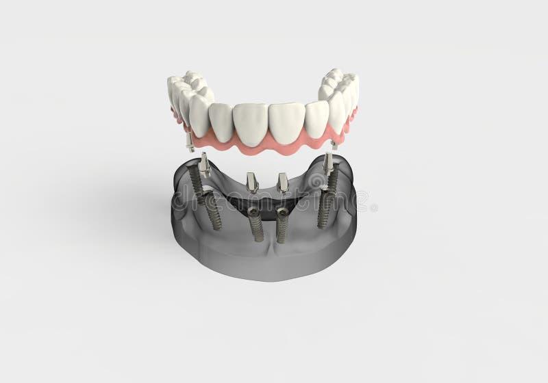 3D renderingu zęby royalty ilustracja